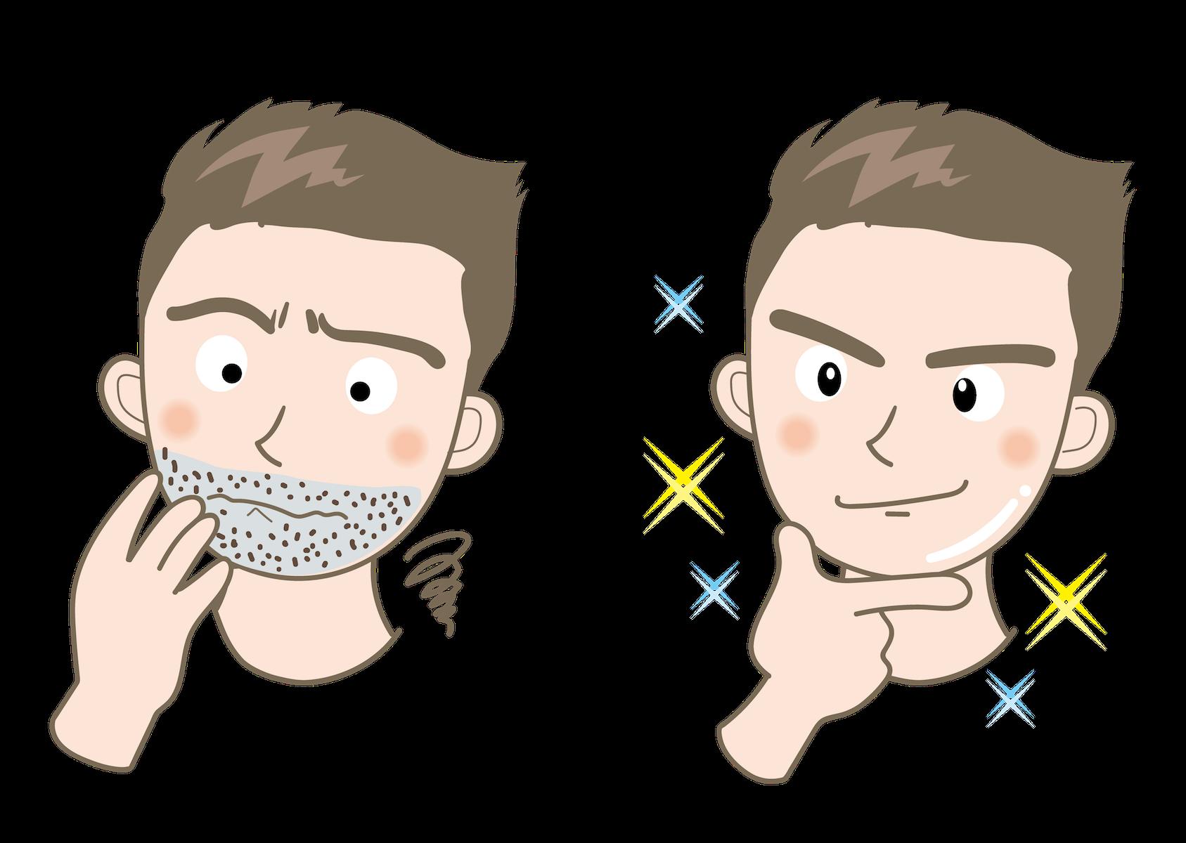 ケノンは男性の髭にも効果ある?